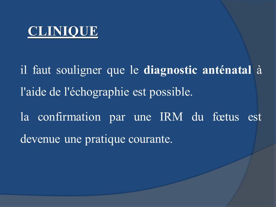 il faut souligner que le diagnostic anténatal à l'aide de l'échographie est possible. la confirmation par une IRM du fœtus est devenue une pratique co