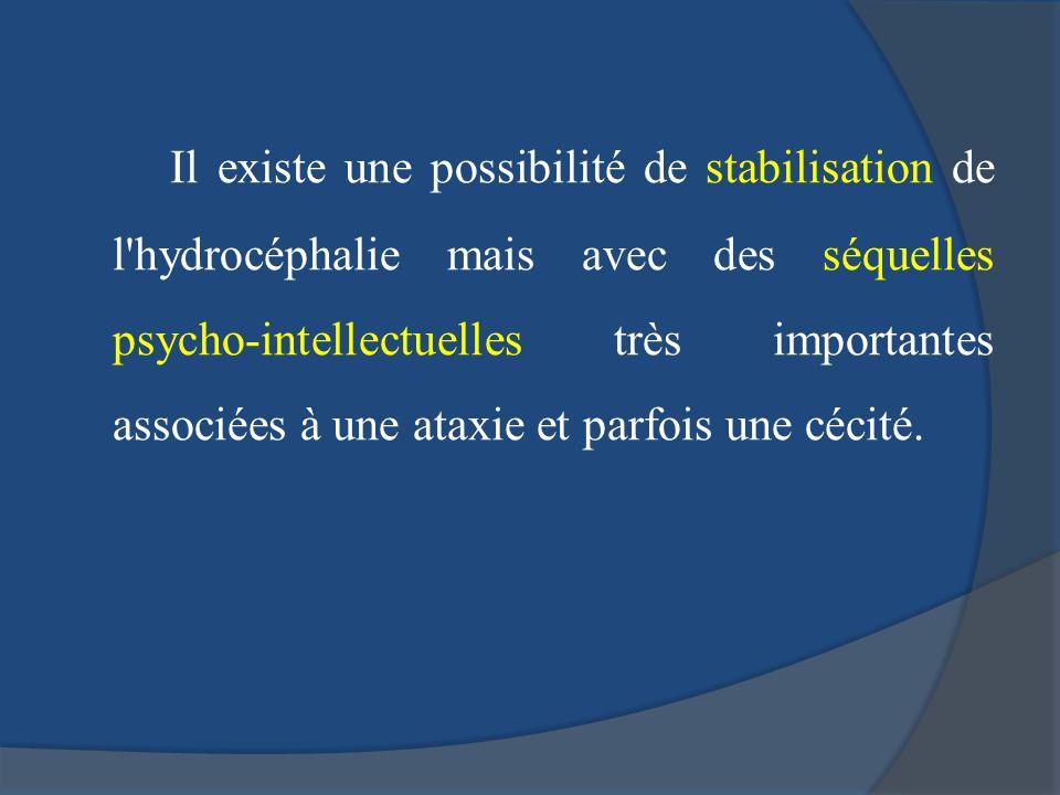 Il existe une possibilité de stabilisation de l'hydrocéphalie mais avec des séquelles psycho-intellectuelles très importantes associées à une ataxie e