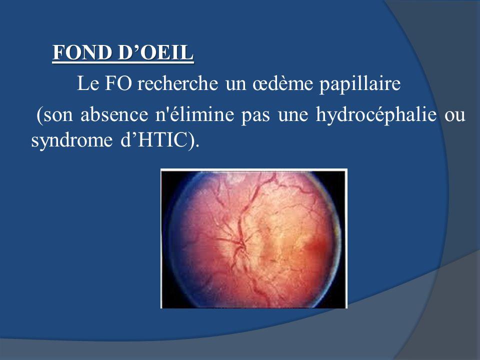 Le FO recherche un œdème papillaire (son absence n'élimine pas une hydrocéphalie ou syndrome dHTIC). FOND DOEIL