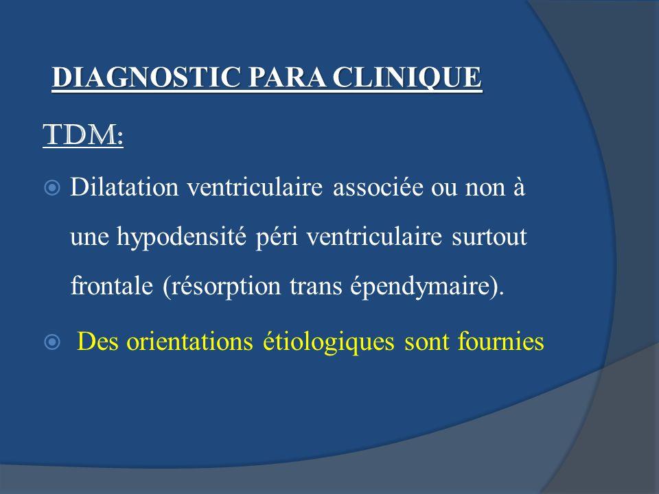 TDM: Dilatation ventriculaire associée ou non à une hypodensité péri ventriculaire surtout frontale (résorption trans épendymaire). Des orientations é