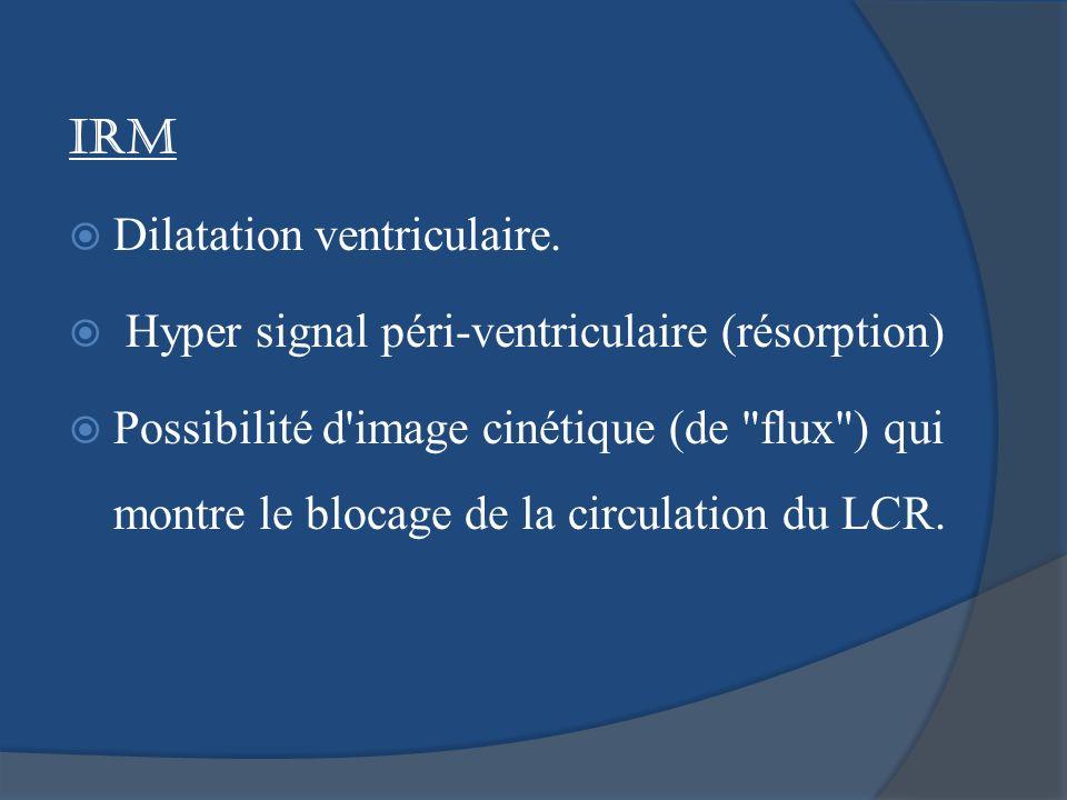IRM Dilatation ventriculaire. Hyper signal péri-ventriculaire (résorption) Possibilité d'image cinétique (de