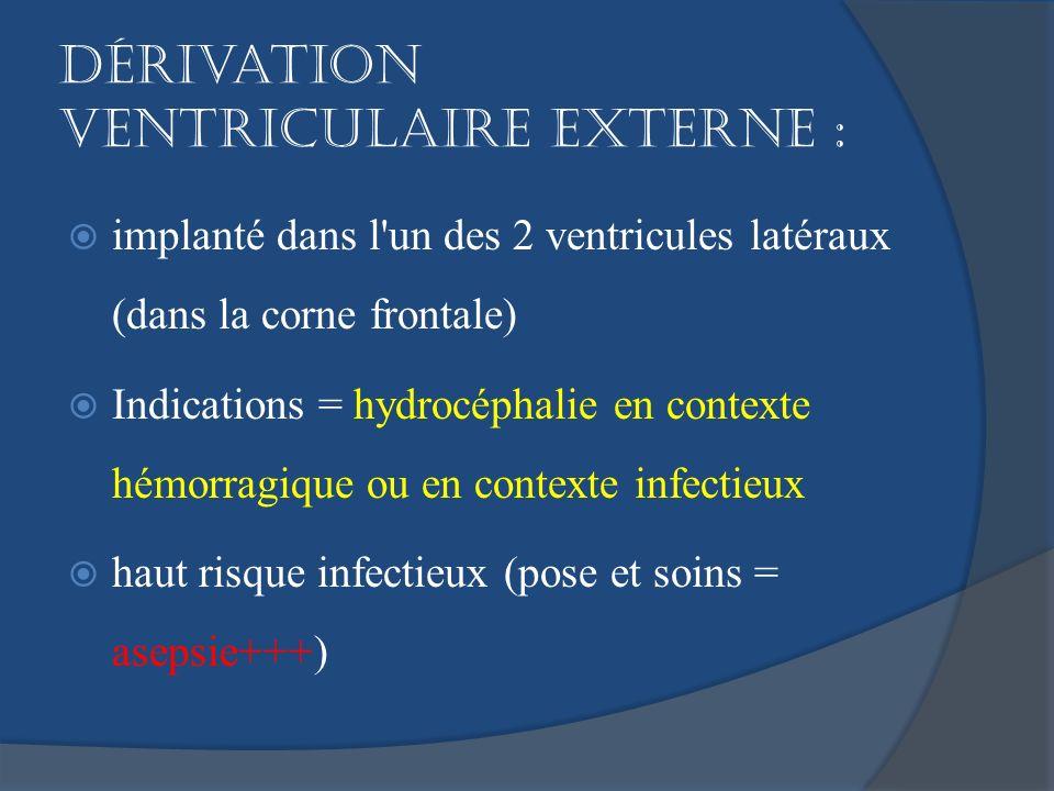 Dérivation ventriculaire externe : implanté dans l'un des 2 ventricules latéraux (dans la corne frontale) Indications = hydrocéphalie en contexte hémo
