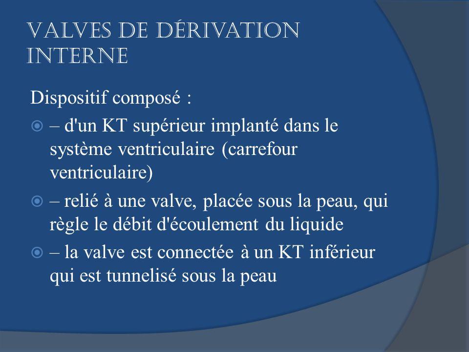 Valves de dérivation interne Dispositif composé : – d'un KT supérieur implanté dans le système ventriculaire (carrefour ventriculaire) – relié à une v