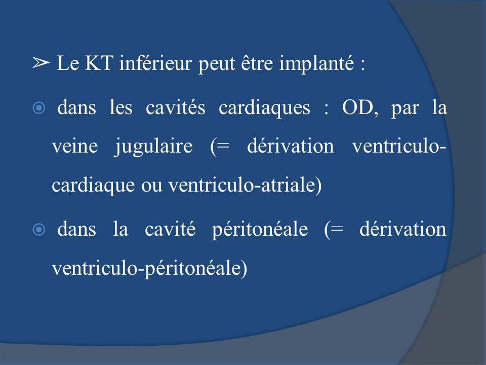 Le KT inférieur peut être implanté : dans les cavités cardiaques : OD, par la veine jugulaire (= dérivation ventriculo- cardiaque ou ventriculo-atrial