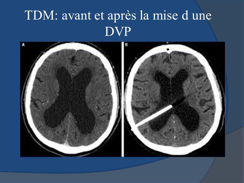 TDM: avant et après la mise d une DVP