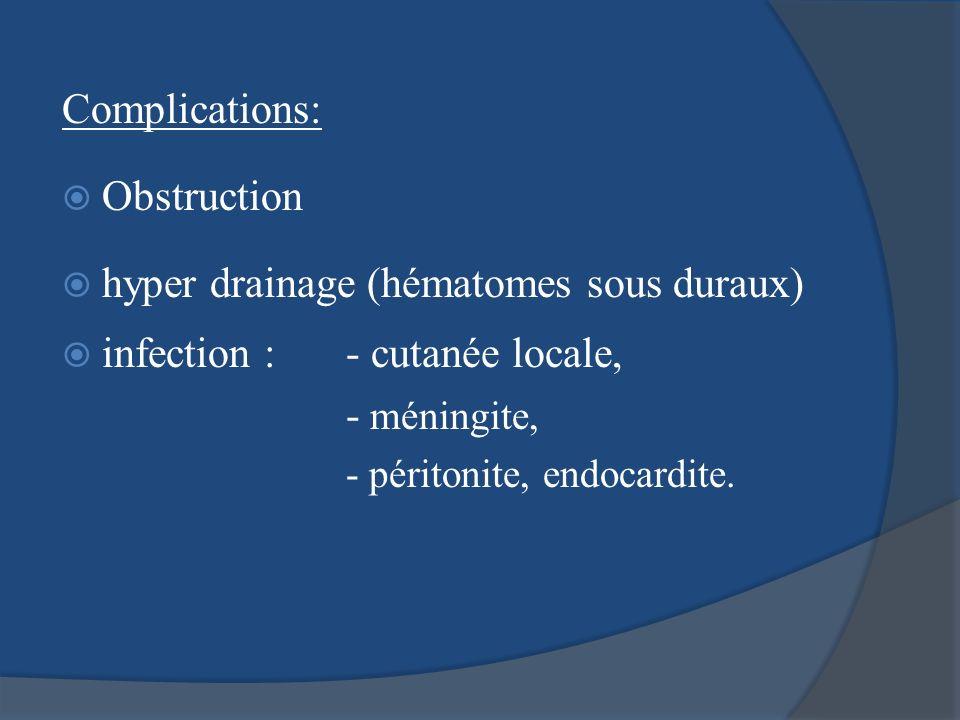 Complications: Obstruction hyper drainage (hématomes sous duraux) infection : - cutanée locale, - méningite, - péritonite, endocardite.