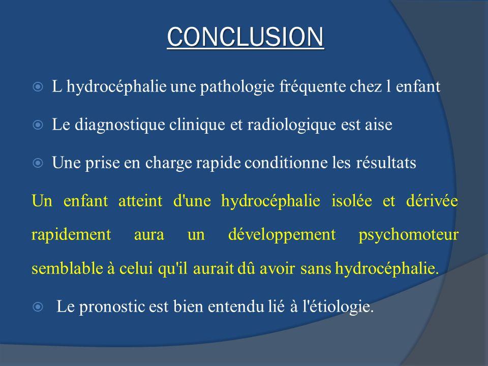 CONCLUSION L hydrocéphalie une pathologie fréquente chez l enfant Le diagnostique clinique et radiologique est aise Une prise en charge rapide conditi