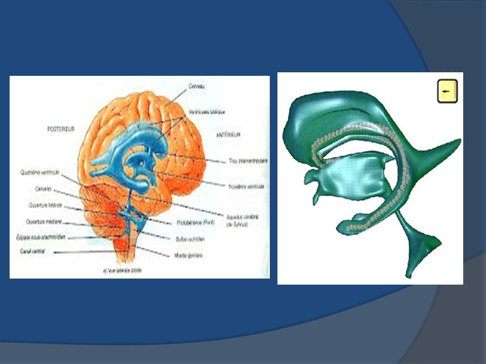 Dérivation ventriculaire externe : implanté dans l un des 2 ventricules latéraux (dans la corne frontale) Indications = hydrocéphalie en contexte hémorragique ou en contexte infectieux haut risque infectieux (pose et soins = asepsie+++)
