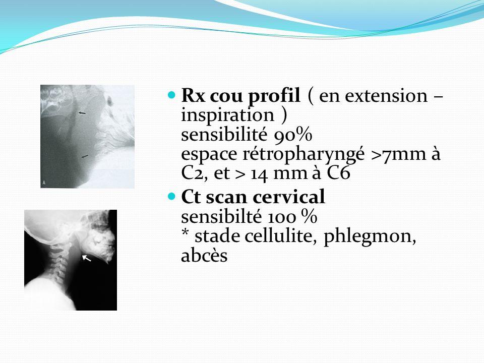 Rx cou profil ( en extension – inspiration ) sensibilité 90% espace rétropharyngé >7mm à C2, et > 14 mm à C6 Ct scan cervical sensibilté 100 % * stade