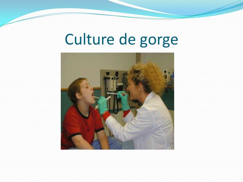 Culture de gorge