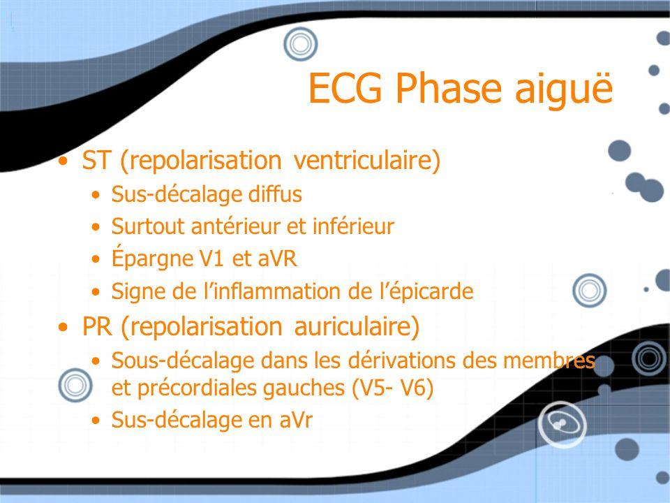 ECG Phase aiguë ST (repolarisation ventriculaire) Sus-décalage diffus Surtout antérieur et inférieur Épargne V1 et aVR Signe de linflammation de lépic