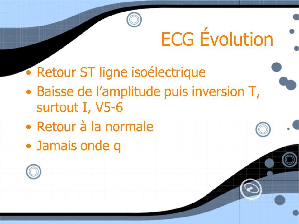 ECG Évolution Retour ST ligne isoélectrique Baisse de lamplitude puis inversion T, surtout I, V5-6 Retour à la normale Jamais onde q Retour ST ligne i