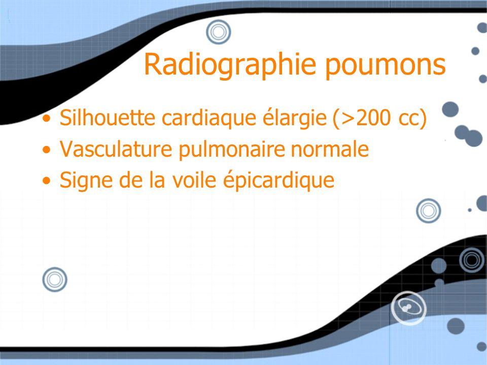 Radiographie poumons Silhouette cardiaque élargie (>200 cc) Vasculature pulmonaire normale Signe de la voile épicardique Silhouette cardiaque élargie
