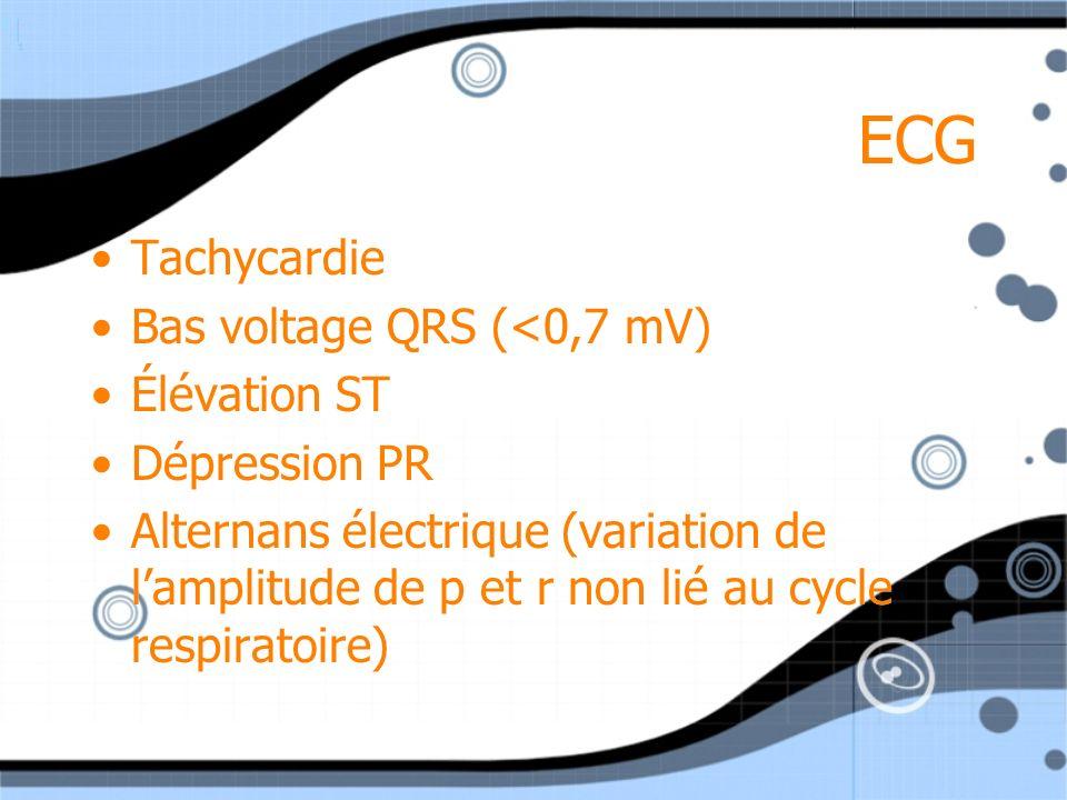 ECG Tachycardie Bas voltage QRS (<0,7 mV) Élévation ST Dépression PR Alternans électrique (variation de lamplitude de p et r non lié au cycle respirat