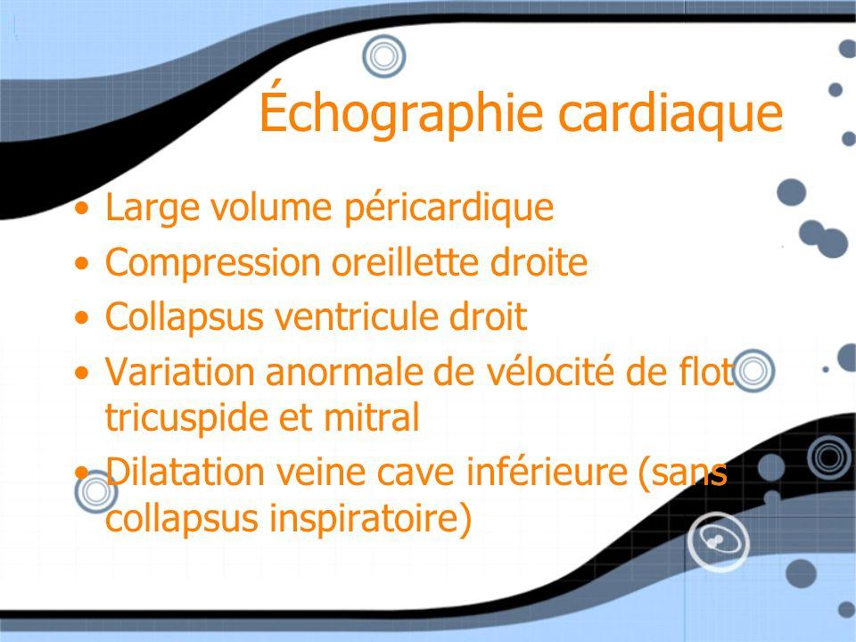 Échographie cardiaque Large volume péricardique Compression oreillette droite Collapsus ventricule droit Variation anormale de vélocité de flot tricus
