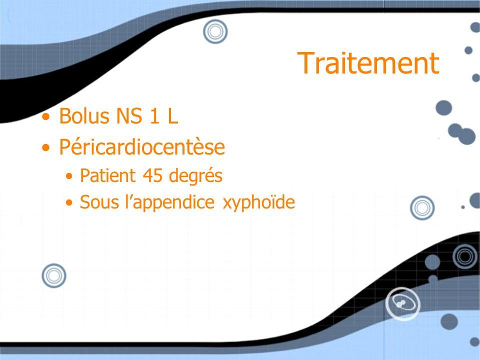 Traitement Bolus NS 1 L Péricardiocentèse Patient 45 degrés Sous lappendice xyphoïde Bolus NS 1 L Péricardiocentèse Patient 45 degrés Sous lappendice