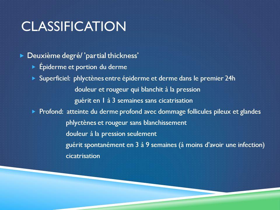 CLASSIFICATION Deuxième degré/ partial thickness Épiderme et portion du derme Superficiel: phlyctènes entre épiderme et derme dans le premier 24h doul