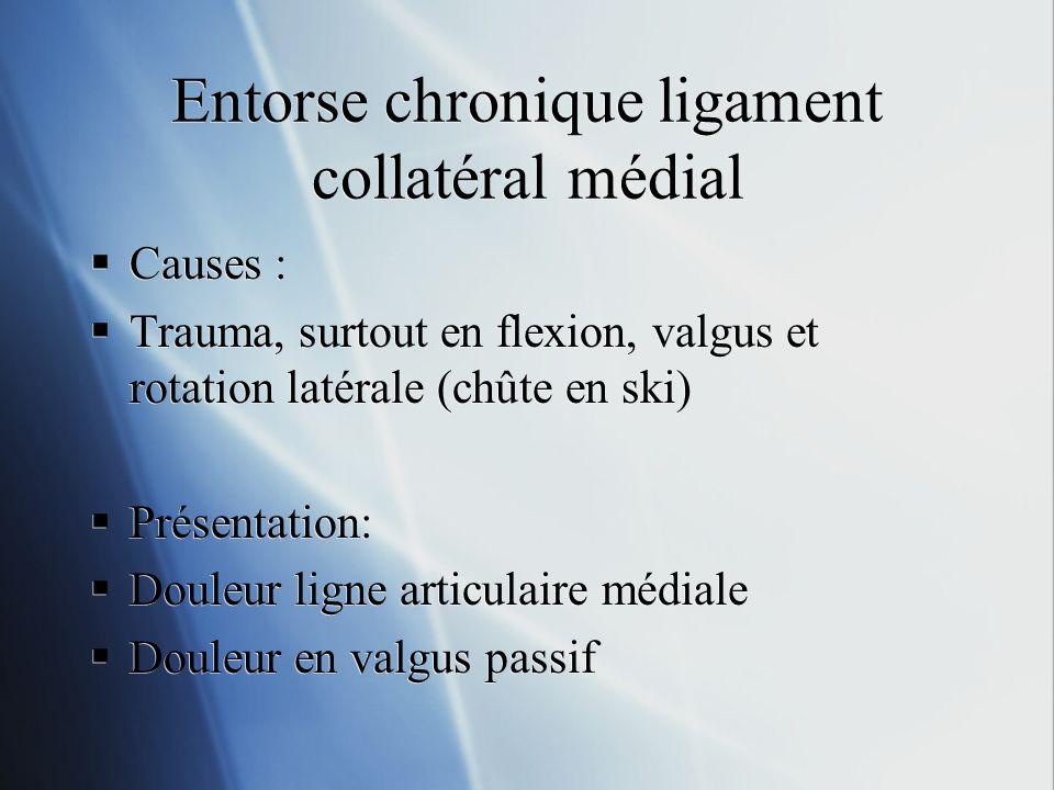 Entorse chronique ligament collatéral médial Causes : Trauma, surtout en flexion, valgus et rotation latérale (chûte en ski) Présentation: Douleur lig