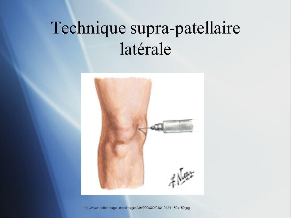 Technique supra-patellaire latérale http://www.netterimages.com/images/vtn/000/000/010/10424-150x150.jpg
