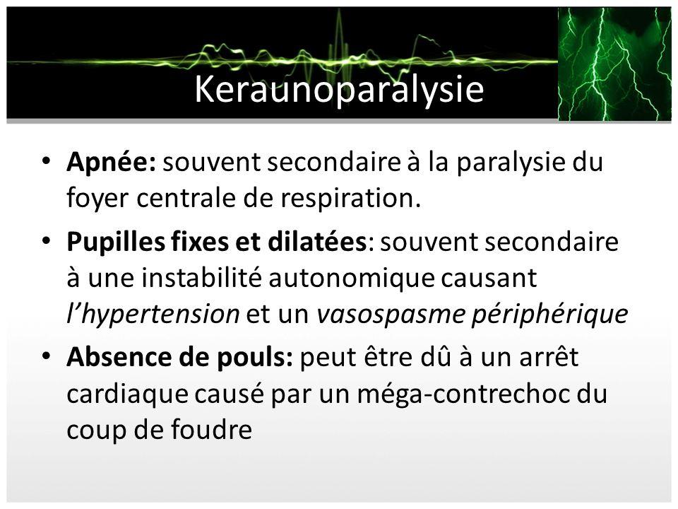 Keraunoparalysie Apnée: souvent secondaire à la paralysie du foyer centrale de respiration. Pupilles fixes et dilatées: souvent secondaire à une insta
