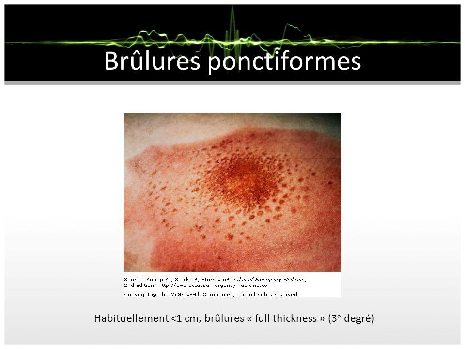 Brûlures ponctiformes Habituellement <1 cm, brûlures « full thickness » (3 e degré)