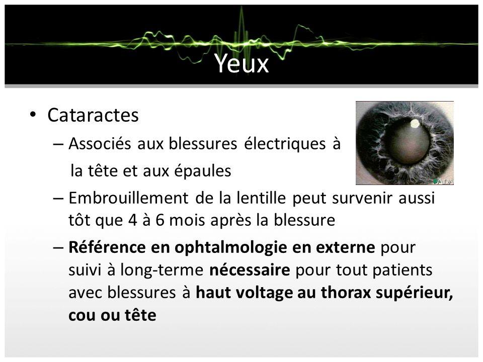 Yeux Cataractes – Associés aux blessures électriques à la tête et aux épaules – Embrouillement de la lentille peut survenir aussi tôt que 4 à 6 mois a