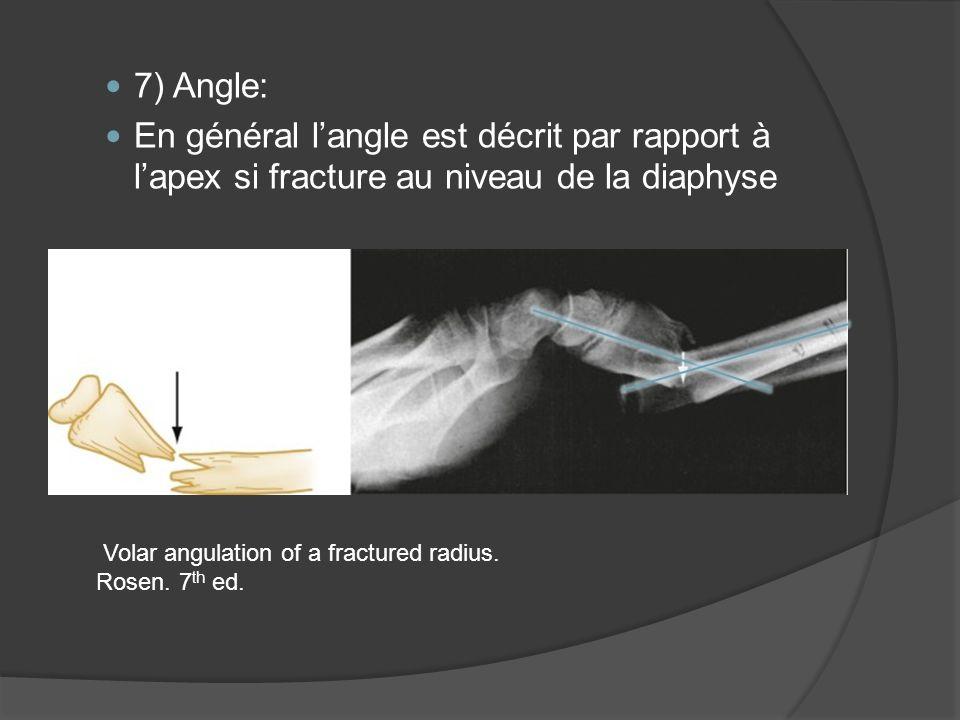 7) Angle: En général langle est décrit par rapport à lapex si fracture au niveau de la diaphyse Volar angulation of a fractured radius. Rosen. 7 th ed