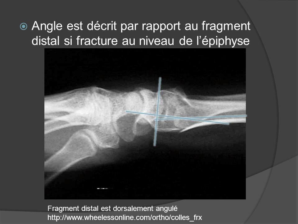 Angle est décrit par rapport au fragment distal si fracture au niveau de lépiphyse Fragment distal est dorsalement angulé http://www.wheelessonline.co