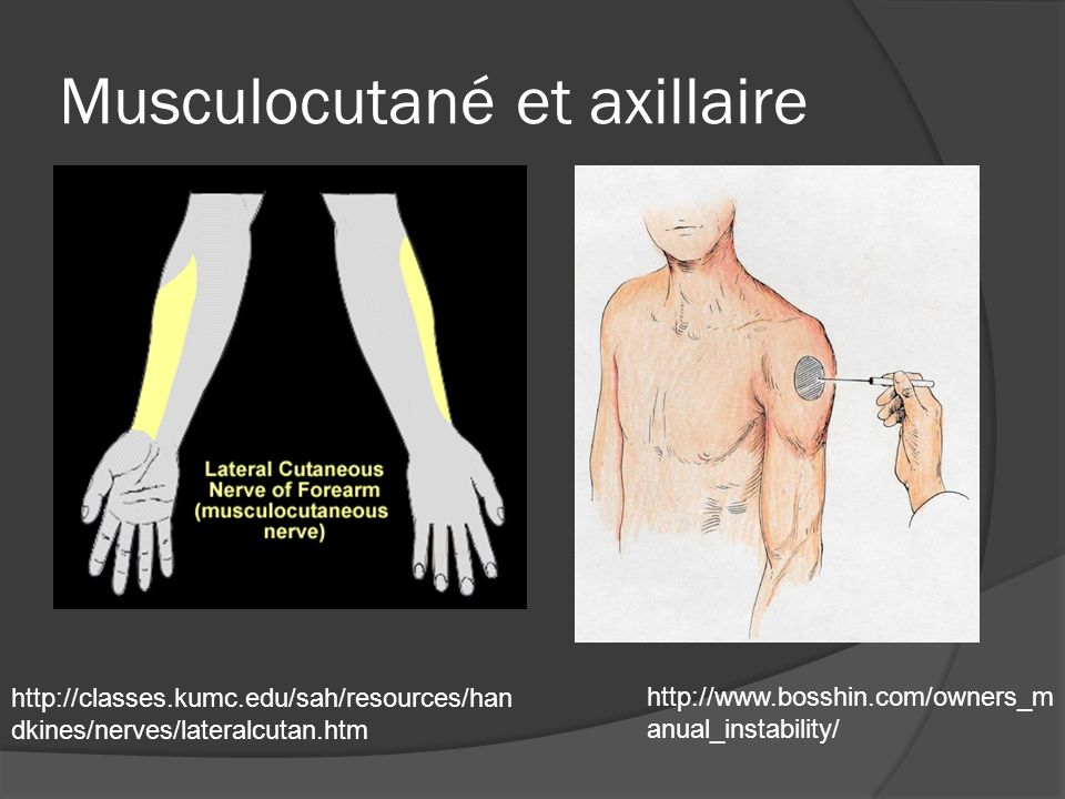 Membre supérieur moteur Thumbs up (dorsiflexion poignet et doigt)= radial Power to the people (flexion + adduction poignet et doigts) + Ok sign= medial Peace (abduction-adduction des doigts)=ulnaire flexion biceps=Musculocutané Abduction du bras=Axillaire