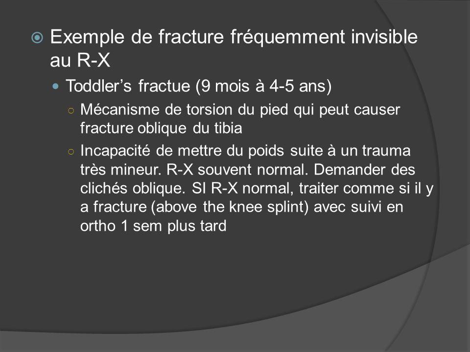 Exemple de fracture fréquemment invisible au R-X Toddlers fractue (9 mois à 4-5 ans) Mécanisme de torsion du pied qui peut causer fracture oblique du