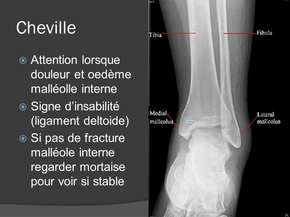 Dislocation de lépaule