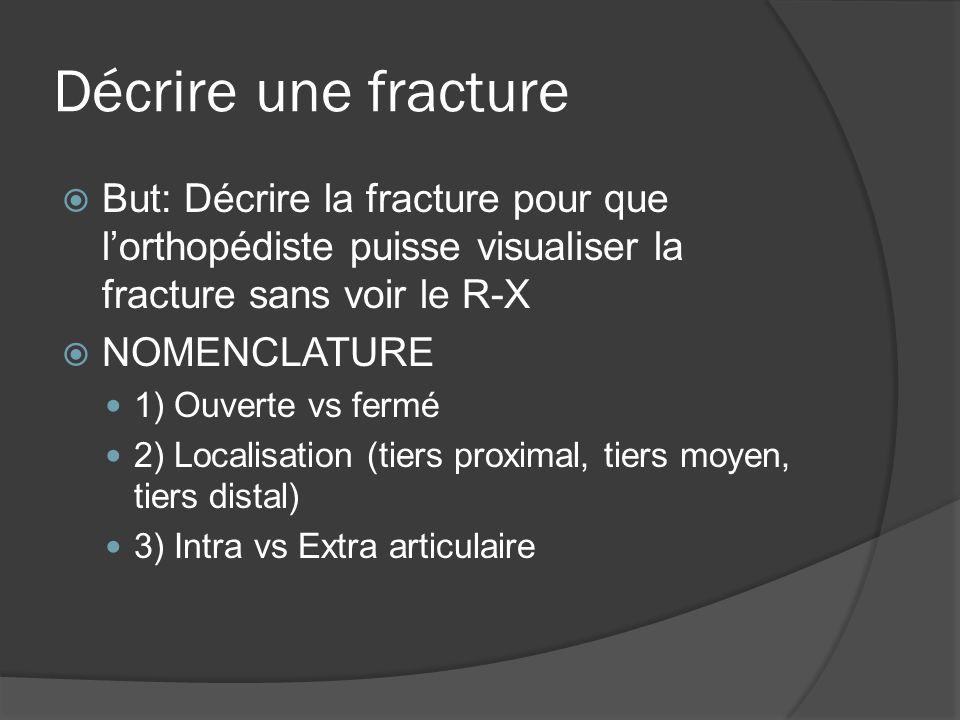 Décrire une fracture But: Décrire la fracture pour que lorthopédiste puisse visualiser la fracture sans voir le R-X NOMENCLATURE 1) Ouverte vs fermé 2