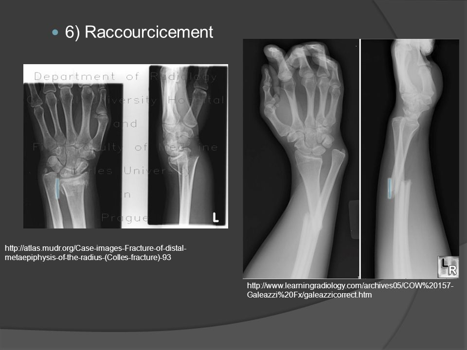6) Raccourcicement http://atlas.mudr.org/Case-images-Fracture-of-distal- metaepiphysis-of-the-radius-(Colles-fracture)-93 http://www.learningradiology.com/archives05/COW%20157- Galeazzi%20Fx/galeazzicorrect.htm