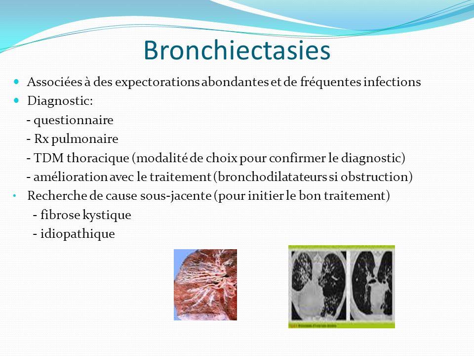 Bronchiectasies Associées à des expectorations abondantes et de fréquentes infections Diagnostic: - questionnaire - Rx pulmonaire - TDM thoracique (mo