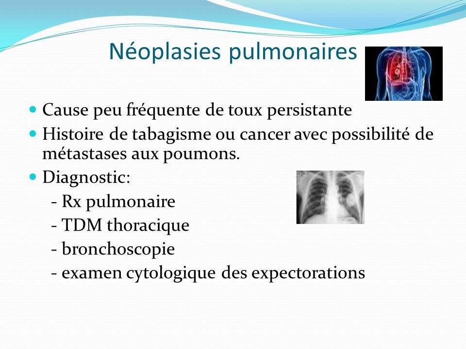 Néoplasies pulmonaires Cause peu fréquente de toux persistante Histoire de tabagisme ou cancer avec possibilité de métastases aux poumons. Diagnostic: