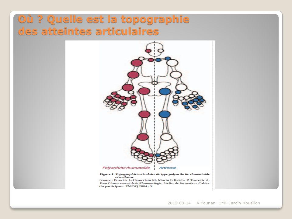 Où ? Quelle est la topographie des atteintes articulaires 2012-08-14A.Younan, UMF Jardin-Rousillon