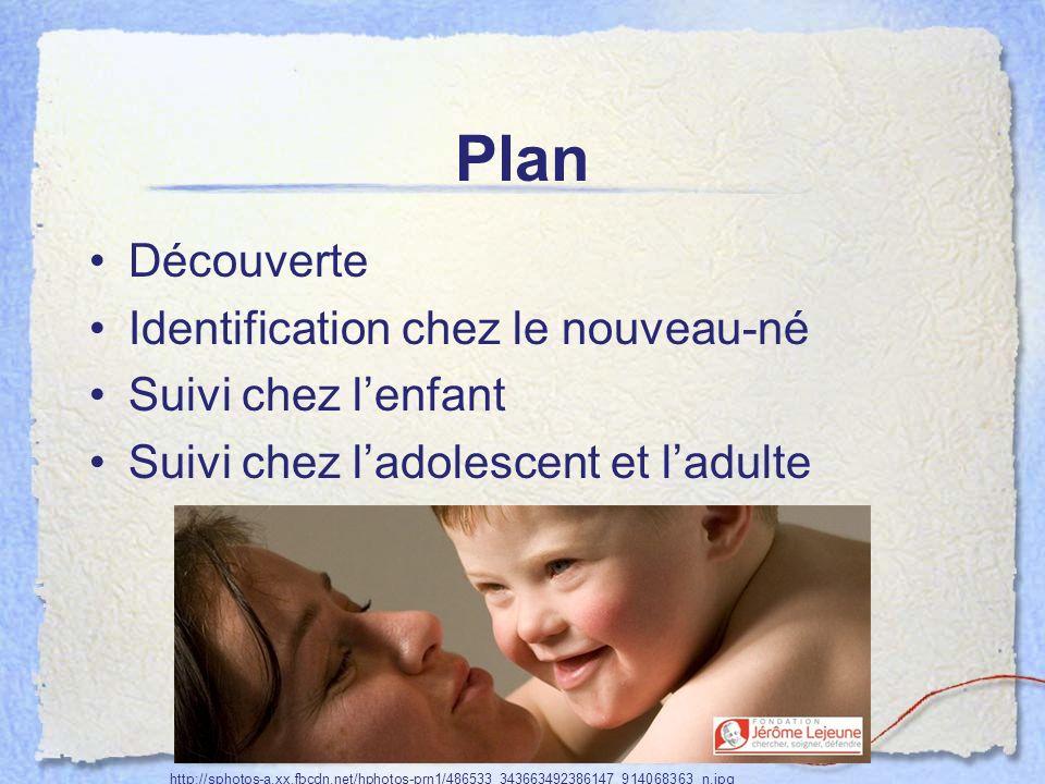 Plan Découverte Identification chez le nouveau-né Suivi chez lenfant Suivi chez ladolescent et ladulte http://sphotos-a.xx.fbcdn.net/hphotos-prn1/4865