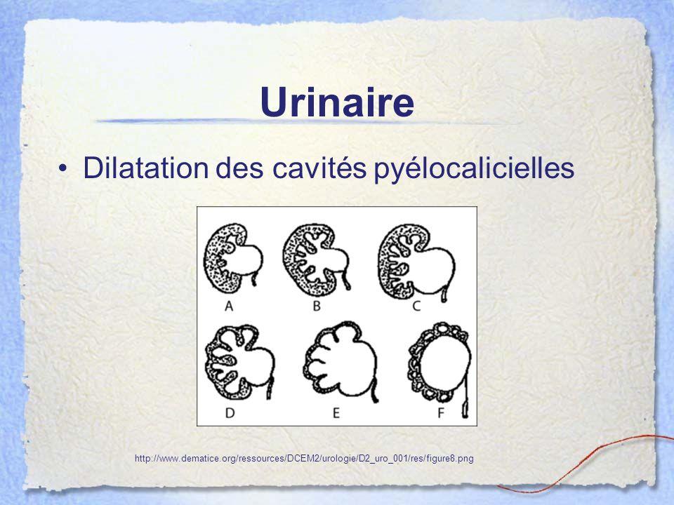 Urinaire Dilatation des cavités pyélocalicielles http://www.dematice.org/ressources/DCEM2/urologie/D2_uro_001/res/figure8.png