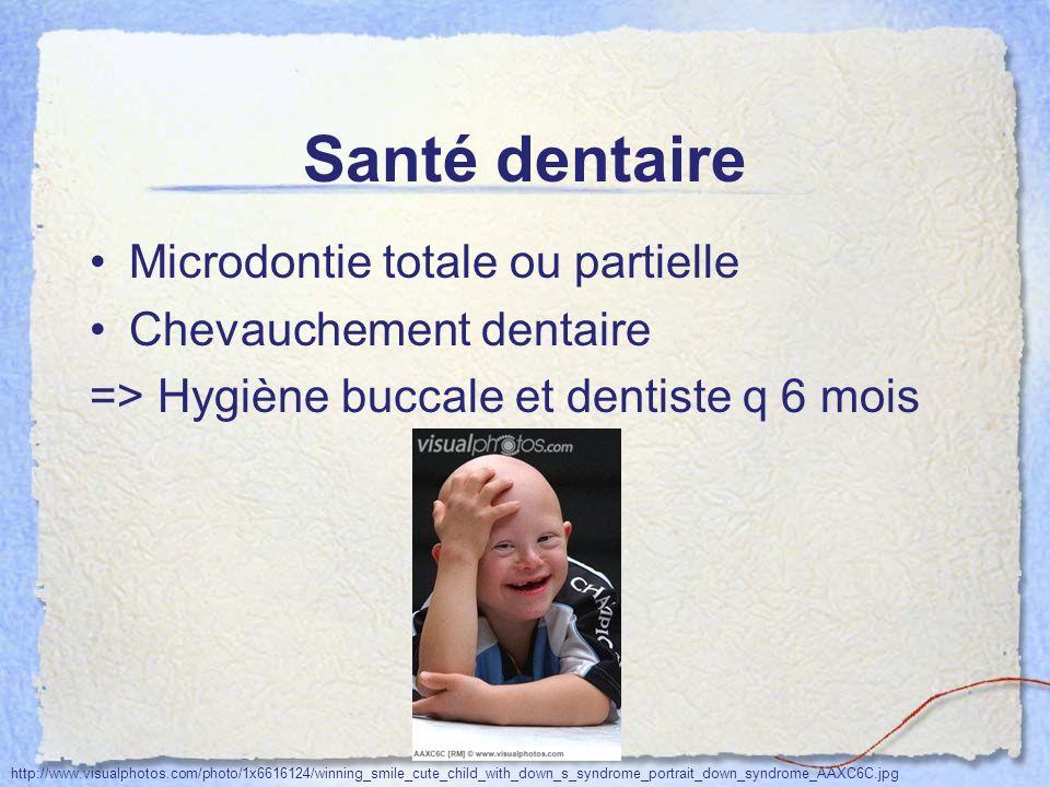 Santé dentaire Microdontie totale ou partielle Chevauchement dentaire => Hygiène buccale et dentiste q 6 mois http://www.visualphotos.com/photo/1x6616