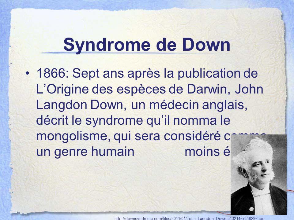 Syndrome de Down 1866: Sept ans après la publication de LOrigine des espèces de Darwin, John Langdon Down, un médecin anglais, décrit le syndrome quil