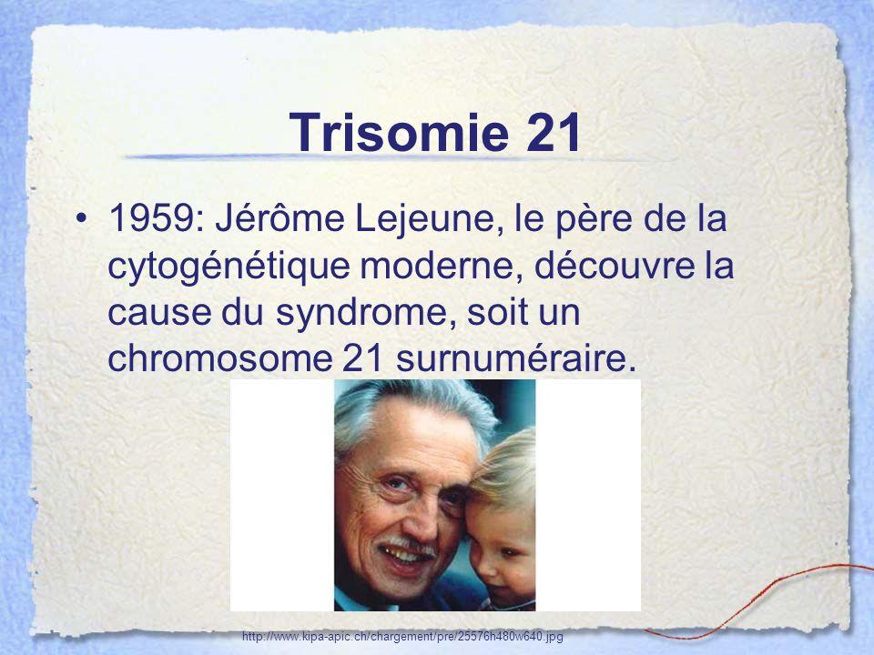 Visuel Strabisme 70% des trisomiques: –Hypermétropie –Obstruction naso-lacrimale –Cataractes congénitales –Anomalies rétiniennes => Consultation ophtalmologie