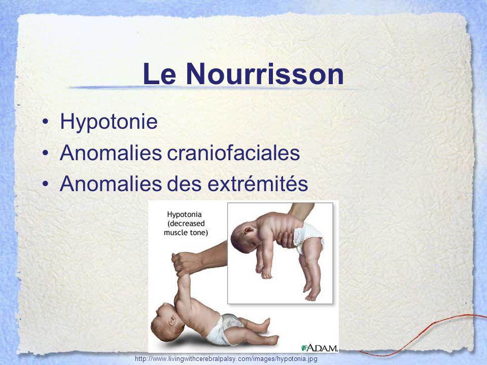 Le Nourrisson Hypotonie Anomalies craniofaciales Anomalies des extrémités http://www.livingwithcerebralpalsy.com/images/hypotonia.jpg