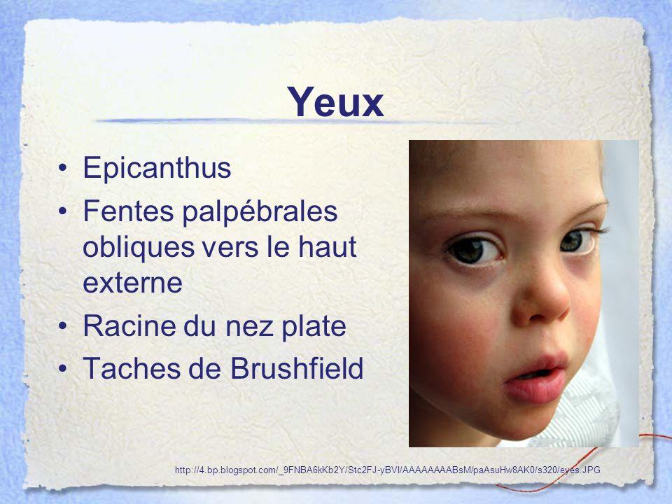 Oreilles Oreilles petites, rondes et basses Repli horizontal de lhélix Petits conduits auditifs http://noahsdad.com/wp-content/2011/07/down-syndrome-baby-pictures-eating-feeding-yams-2.jpg