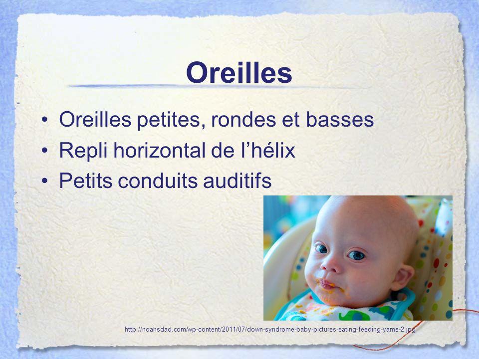 Oreilles Oreilles petites, rondes et basses Repli horizontal de lhélix Petits conduits auditifs http://noahsdad.com/wp-content/2011/07/down-syndrome-b