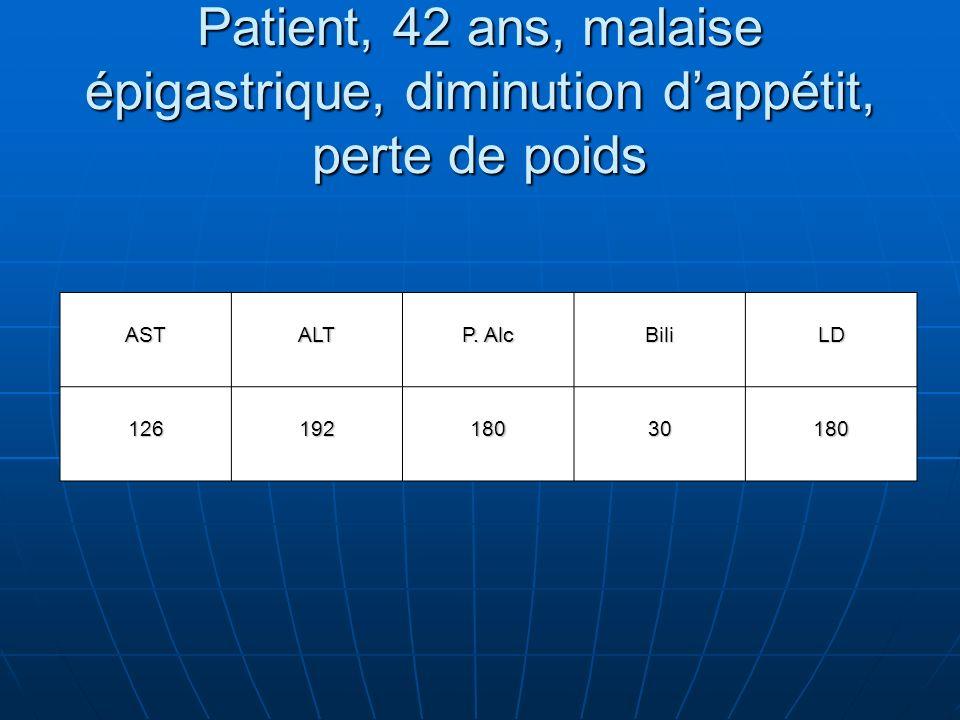 Patient, 42 ans, malaise épigastrique, diminution dappétit, perte de poids ASTALT P.