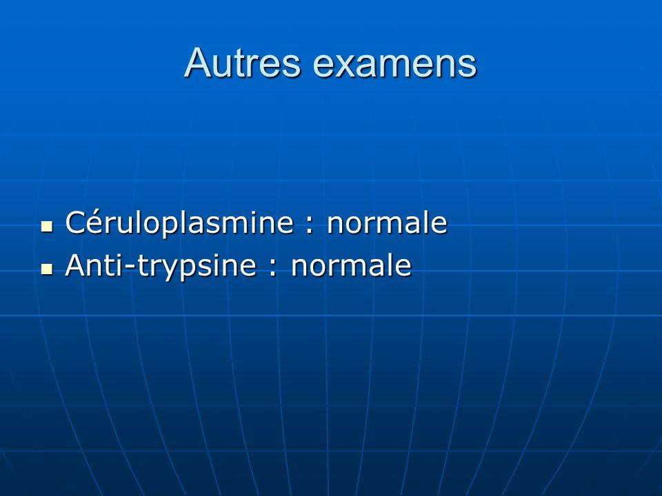 Autres examens Céruloplasmine : normale Céruloplasmine : normale Anti-trypsine : normale Anti-trypsine : normale
