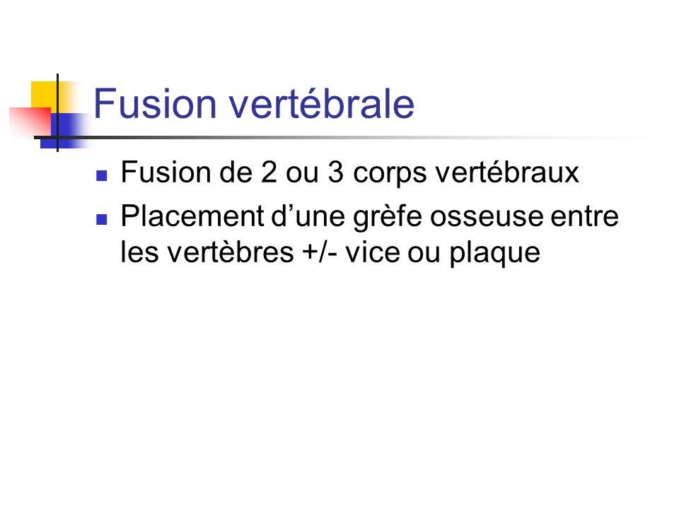 Fusion vertébrale Fusion de 2 ou 3 corps vertébraux Placement dune grèfe osseuse entre les vertèbres +/- vice ou plaque