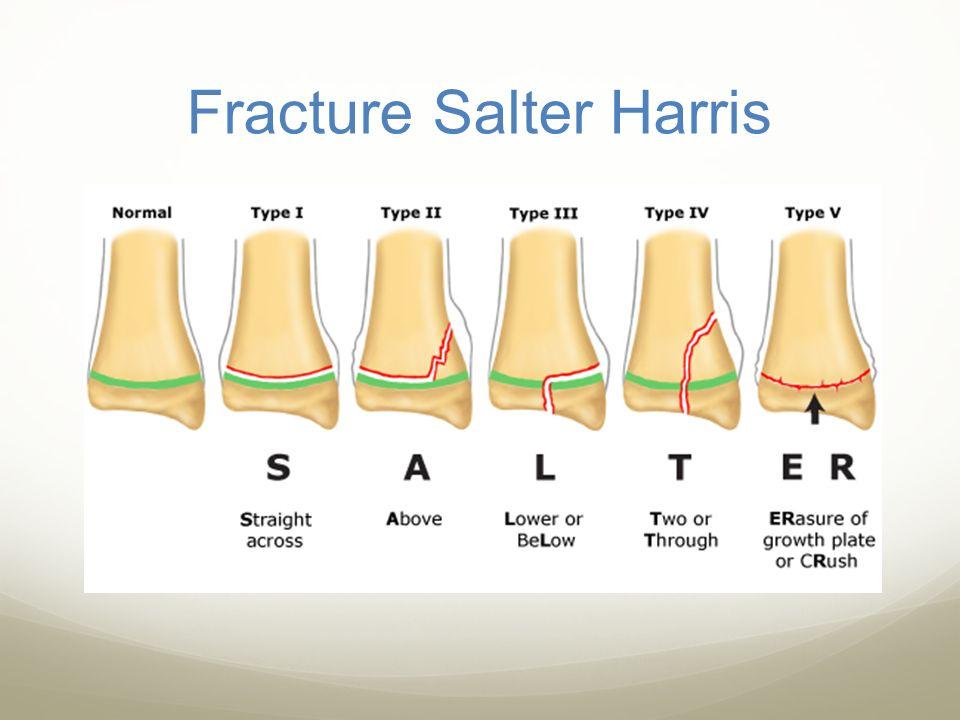 Fracture Salter Harris