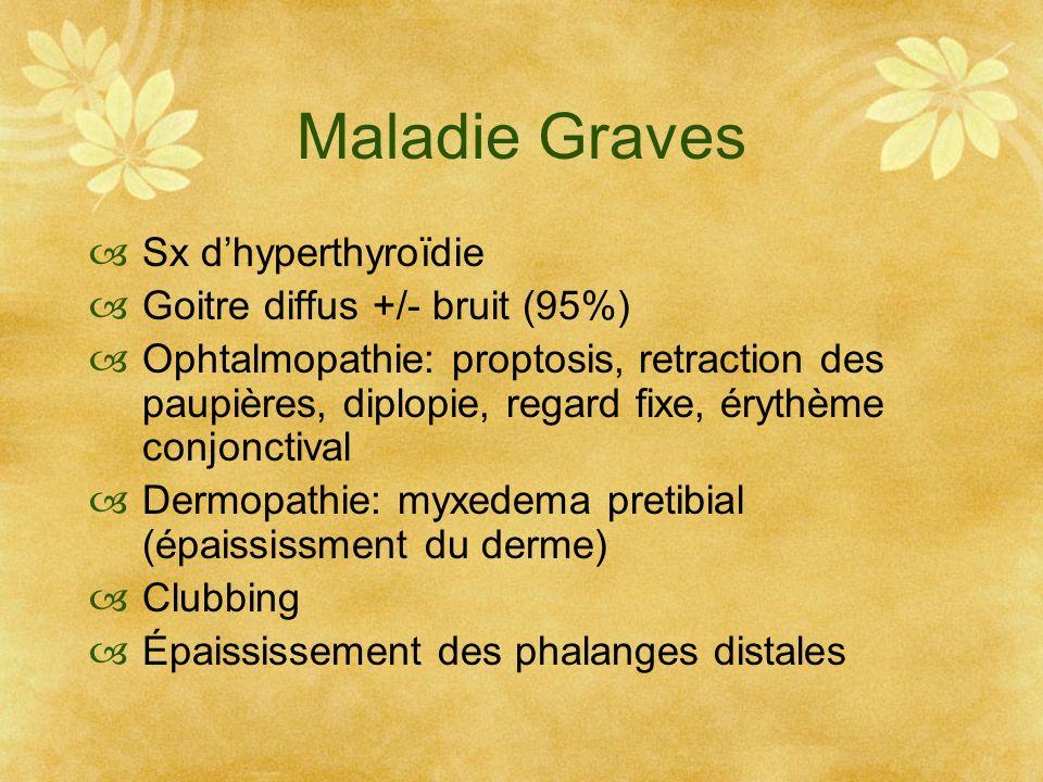 Maladie Graves Sx dhyperthyroïdie Goitre diffus +/- bruit (95%) Ophtalmopathie: proptosis, retraction des paupières, diplopie, regard fixe, érythème c