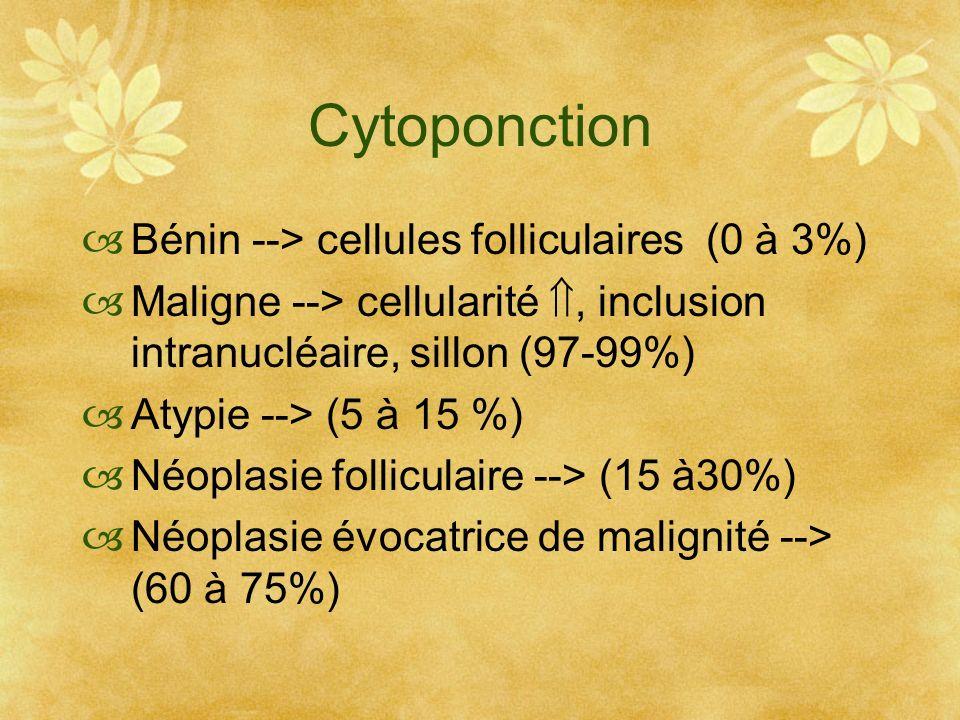 Cytoponction Bénin --> cellules folliculaires (0 à 3%) Maligne --> cellularité, inclusion intranucléaire, sillon (97-99%) Atypie --> (5 à 15 %) Néopla